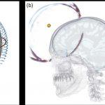 Algorithms for finding earthquakes determine stroke in the human brain