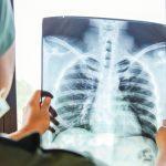 Asthma, Arteriosklerose und Diabetes: Welche chronischen Krankheiten sind mit COVID-19 am gefährlichsten?
