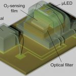The microimplant measures the oxygen level in the tissues deep under the skin in real time