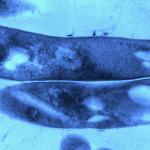 يكتشف الاختبار عصية كوخ لدى الأطفال قبل وقت طويل من ظهور مرض السل