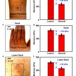Touch sensor detects skin diseases in a minute