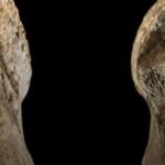 Das neue Implantat beschleunigt die Knochenheilung und löst sich im Körper auf